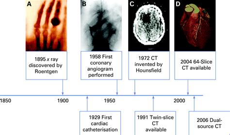 Cardiac CT and CT coronary angiography: technology and