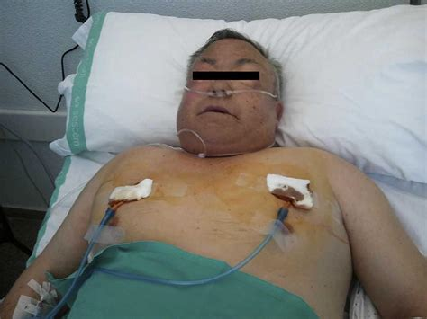 Treatment of Severe Subcutaneous Emphysema by